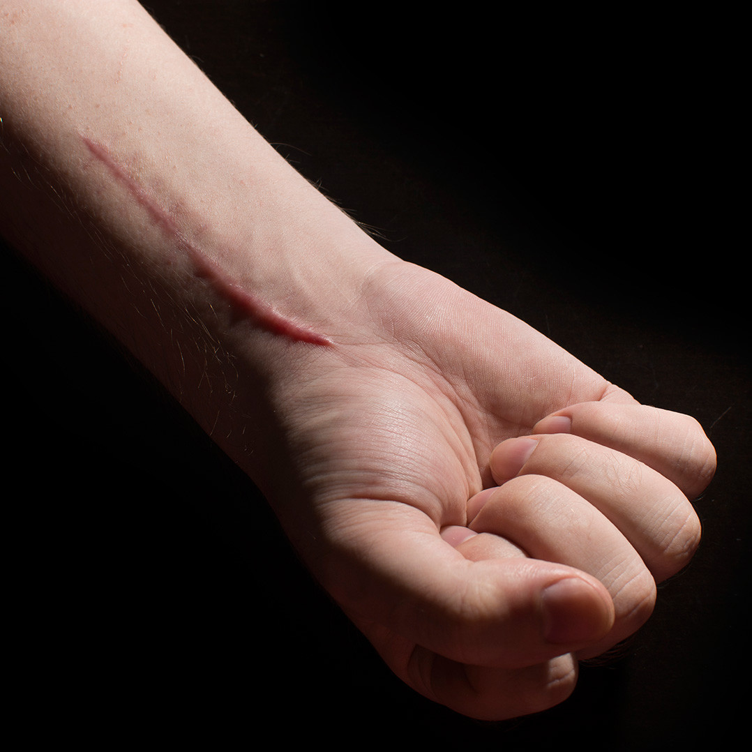 A hand with a raised scar