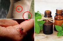 essential oils for spider bite relief